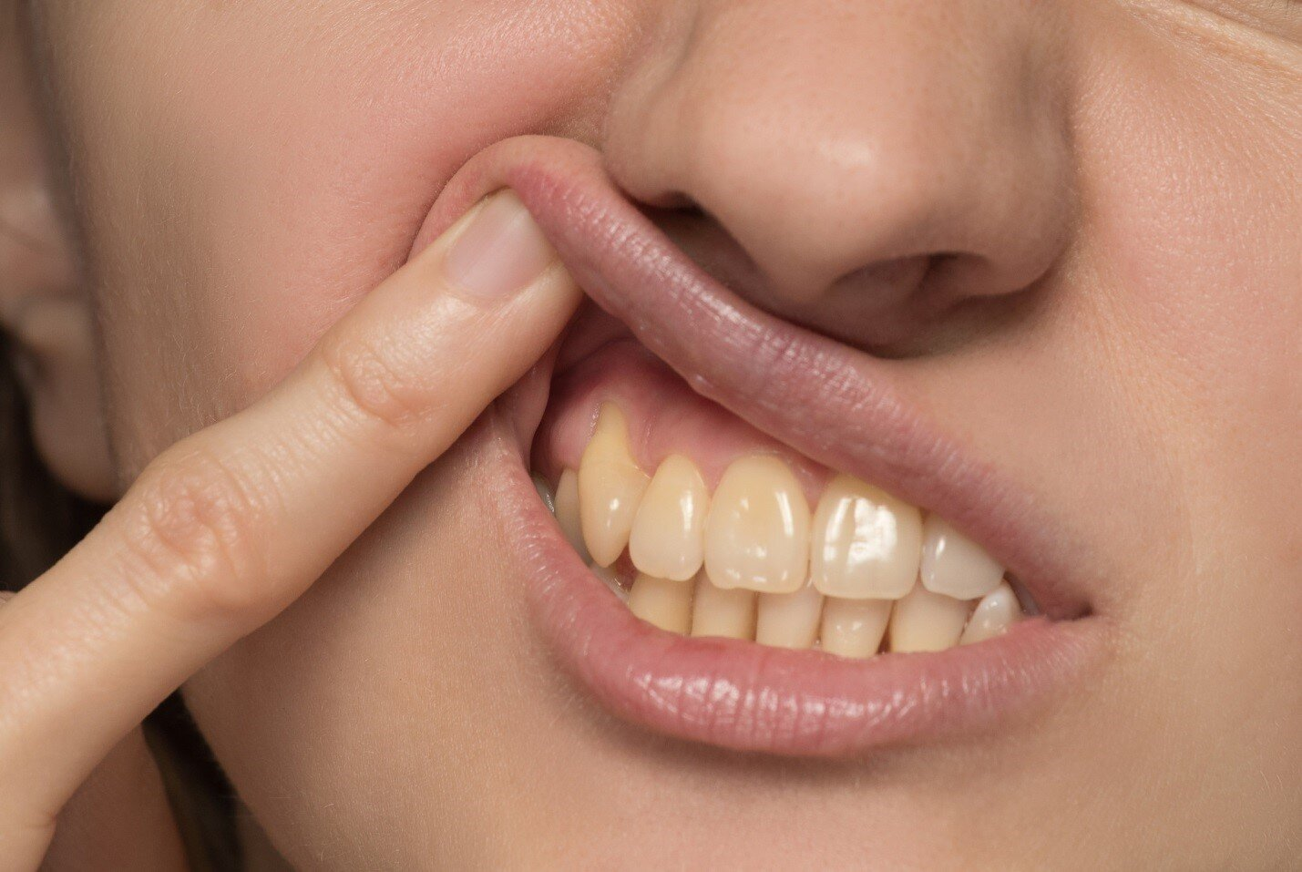 Yellow Teeth? 5 Easy and Cheap Ways to Whiten Your Teeth at Home